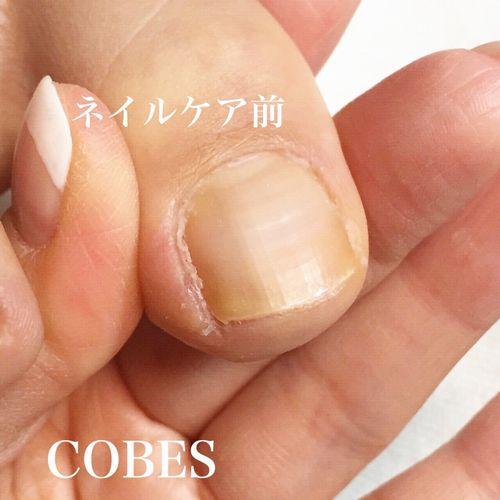 cobes150325