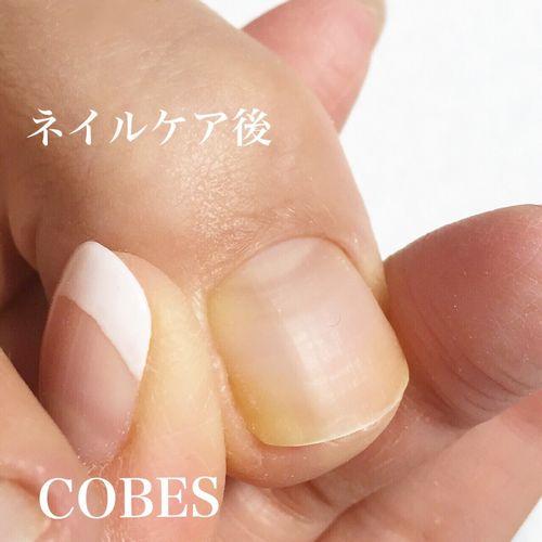 cobes1503253
