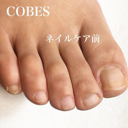 cobes1503256