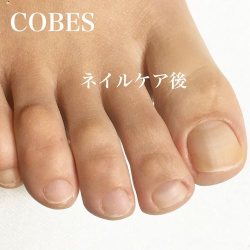 cobes1503257